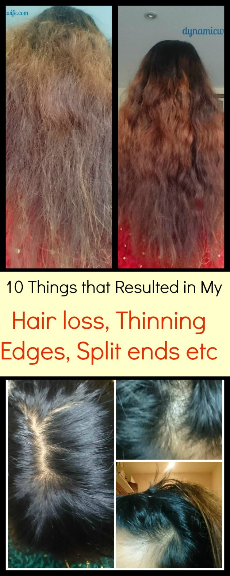 bald spot before and after