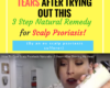 1000s are Shedding Happy Tears After Trying Out this 3 Step Remedy for Scalp Psoriasis!
